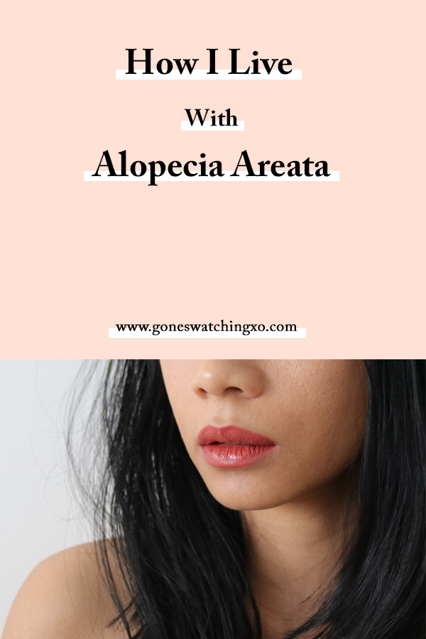 How I live with Hair Loss from Alopecia Areata. Green Beauty Blogger Gone Swatching xo